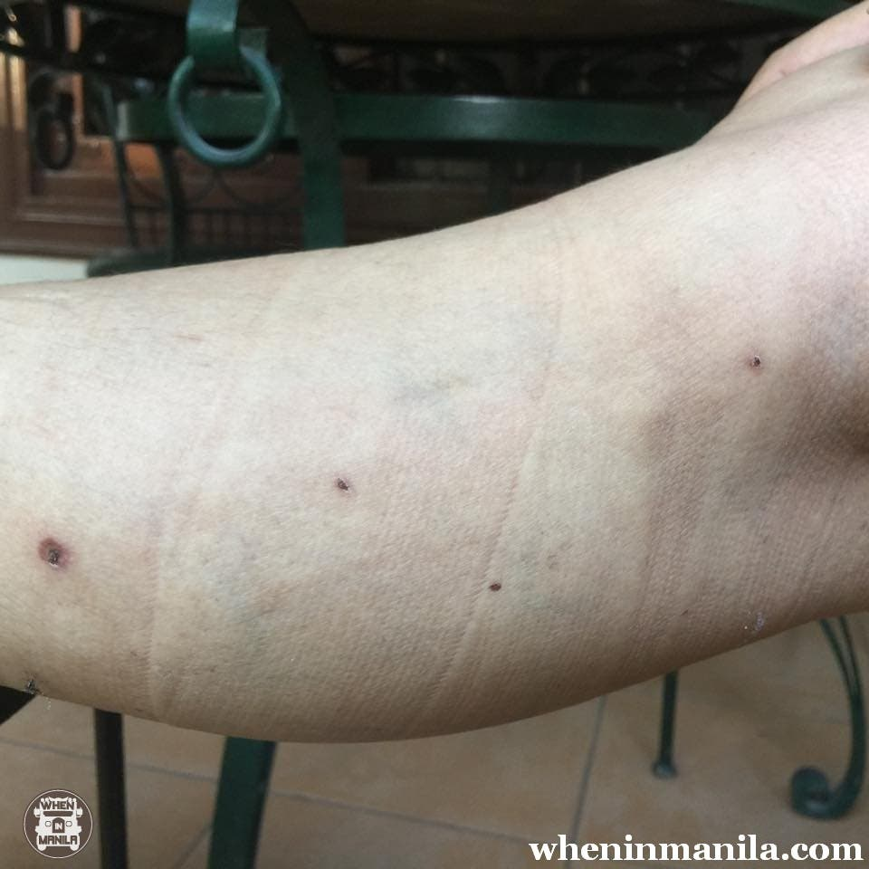 Leg area 8 days after phlebectomy and 5 days after application of the Pure Aloe Vera Gel