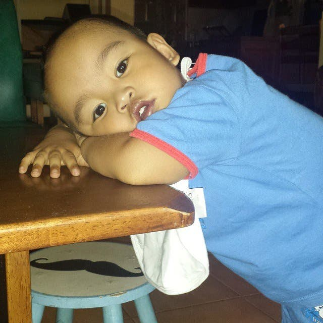 HELP Mother Needs Help for 3 Year Old Son Who Needs Surgery