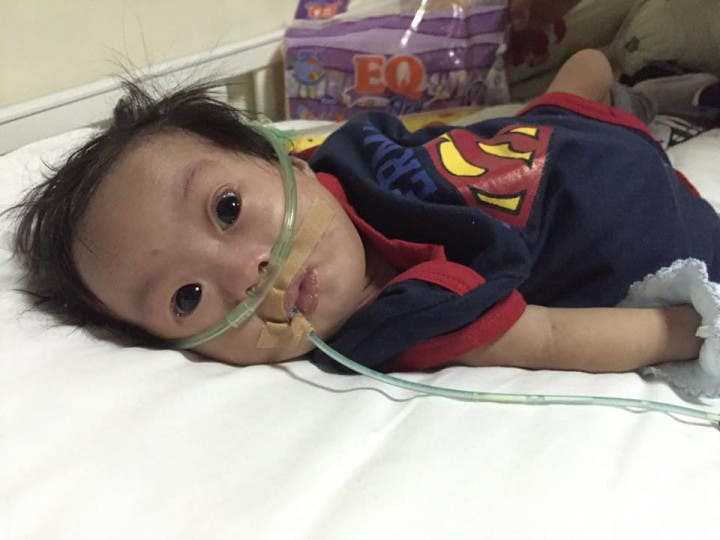 Call for Help for Baby Jerico Immanuel's Medical Needs
