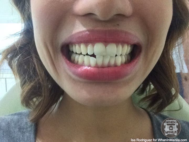 Getting the perfect smile molar tooth extraction my fashion smile fashion smile bracesimg4798 solutioingenieria Image collections