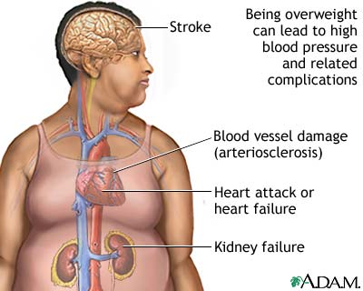 5 ways that obesity affects your organs when in manila 5 ways that obesity affects your organs ccuart Image collections