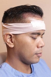 Tonipet Gaba on Svenson Hair Transplant: I finally put an end to my hair loss worries!