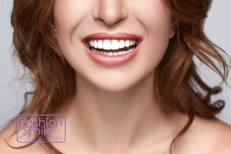 Smile Like a Star 1 - Direct Composite Veneers: Smile Like a Star in Just One Visit