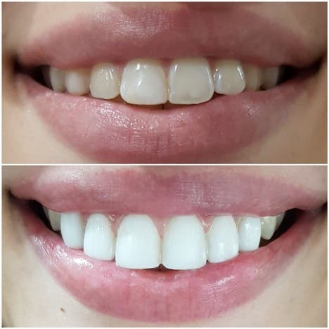 Smile Like a Star 2 - Direct Composite Veneers: Smile Like a Star in Just One Visit
